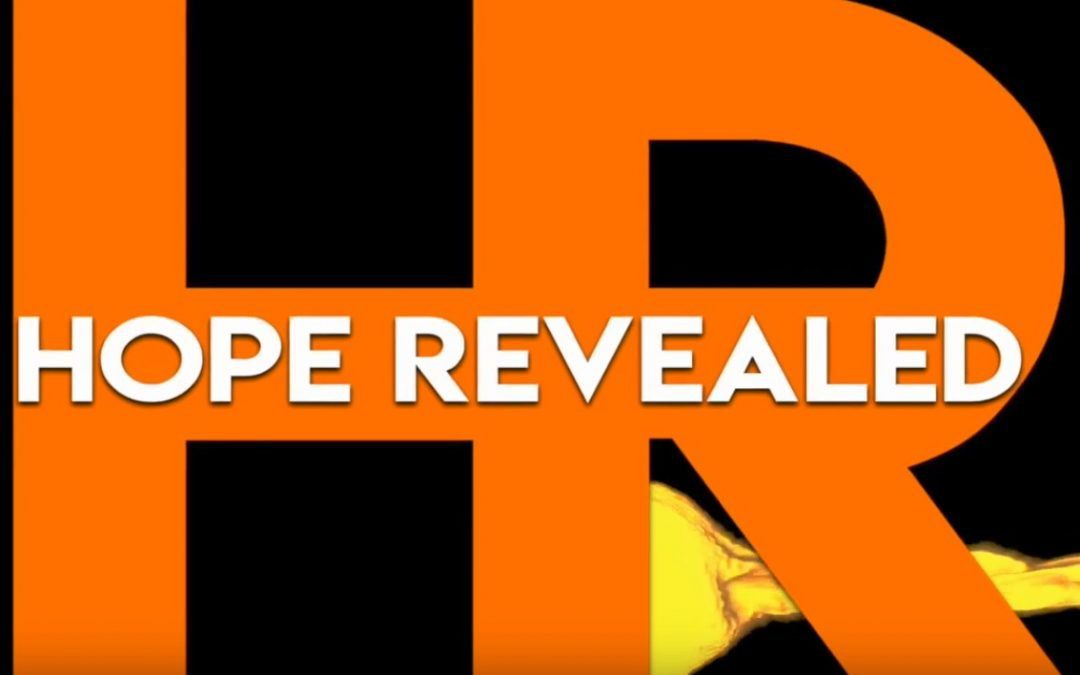 Hope Revealed Episode #28